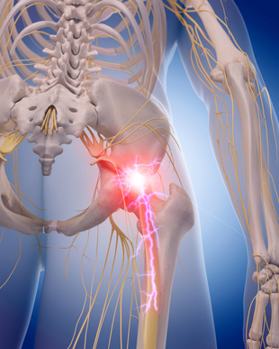 Image result for Eliminate Your Sciatica Naturally